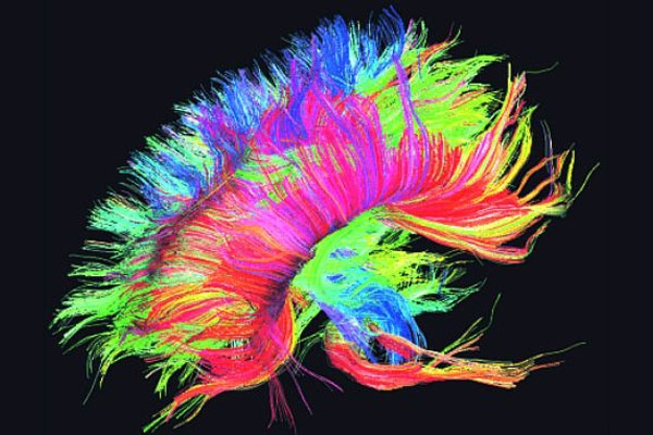 surpriz-beyin.jpg_581520[1]